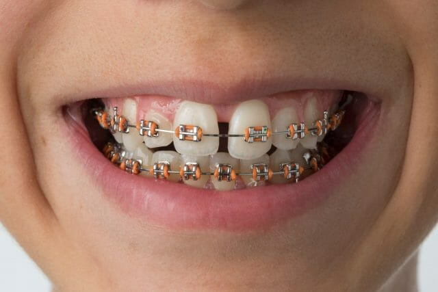 Closeup of child with braces