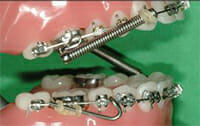 Close-up photo of fixing a spring on braces