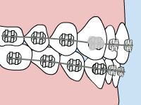 Illustration of how to fix loose brackets