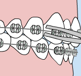 Illustration of how to fix wire irritation on braces
